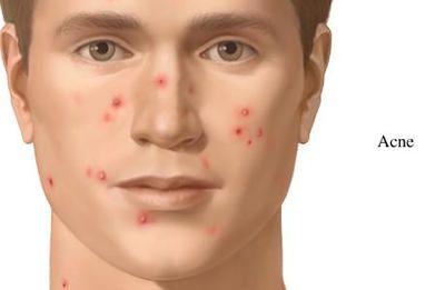 Antibakteriyel Bitkiler ve Akne