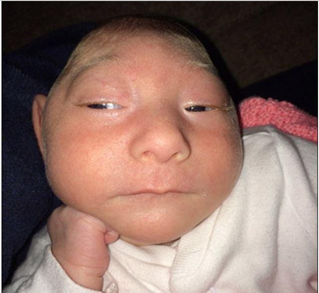 ikiz-bebekler-mucize