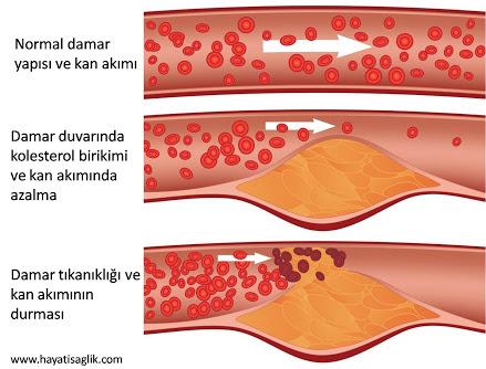 kolesterol-dusurucu