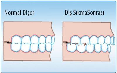 Diş sıkması sorunu