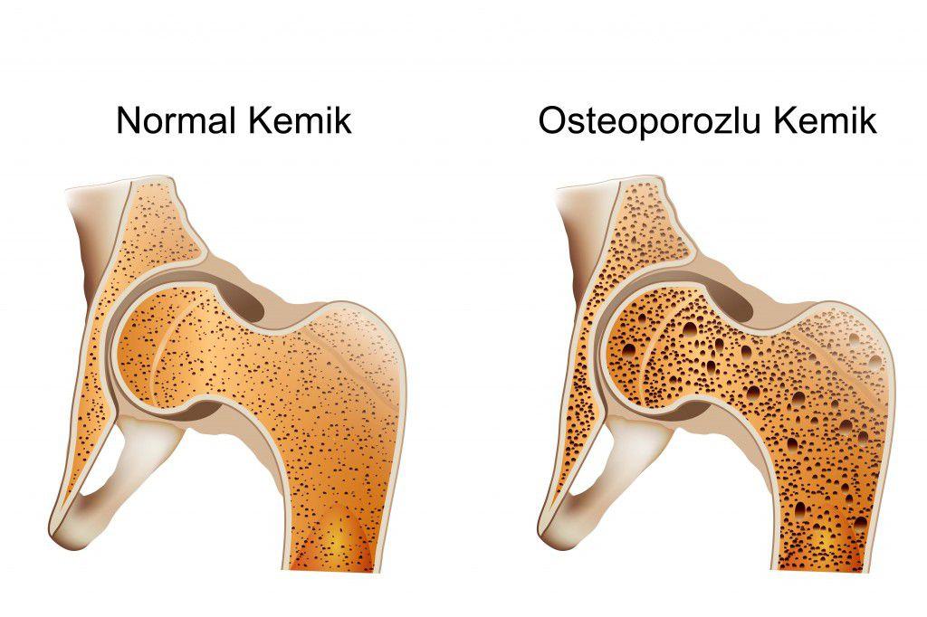 Kemik Erimesine Karşı Radyolojik Tetkik