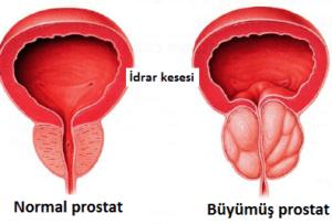 Prostat Kanseri Belirtileri ve Tedavisi