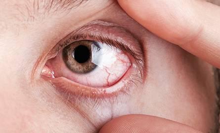 Glokom, Göz Tansiyonu Belirtileri ve Tedavileri