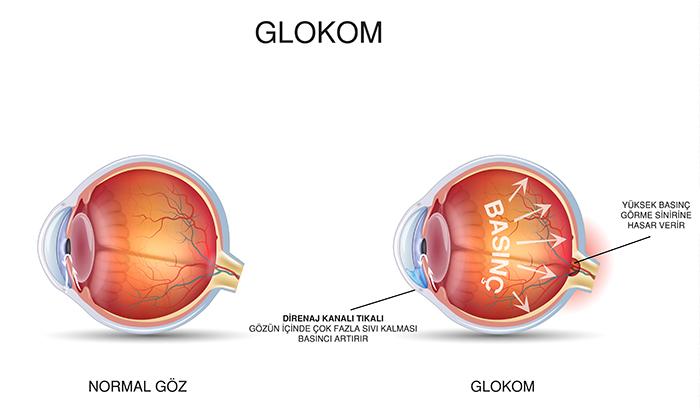 Glokom-Göz Tansiyonu
