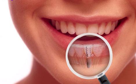 implant-tedavisi