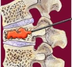 Bel Fıtığı Tedavisi-Kemik Çimentosu