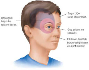 migren-belirtileri
