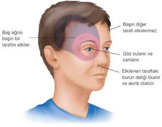 Migren Ağrıları-Migren Belirtileri