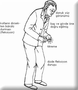 parkinson-gorunumu