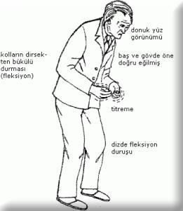 Parkinson Hastalığı Belirtileri