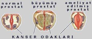 prostat-asamalari