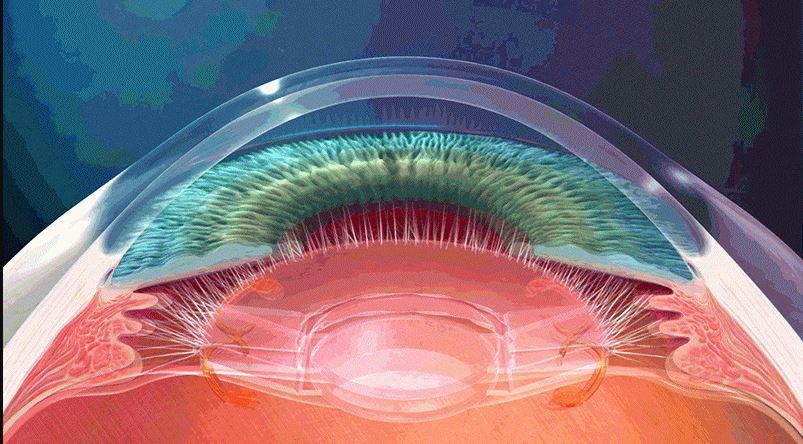 trifokal-lensler