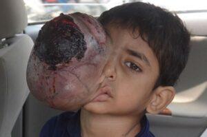 Amir Khan,Pakistanlı Ali Hasan'ın Tedavisini Üstleniyor