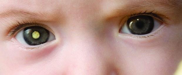 Retinoblastom Nedir