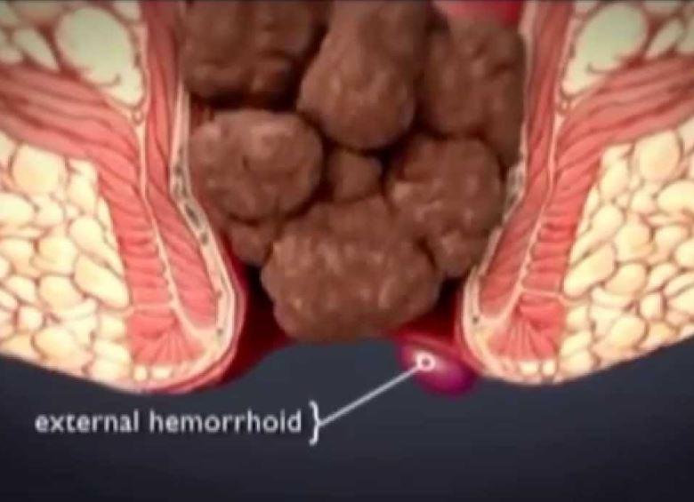 dis-hemoroid
