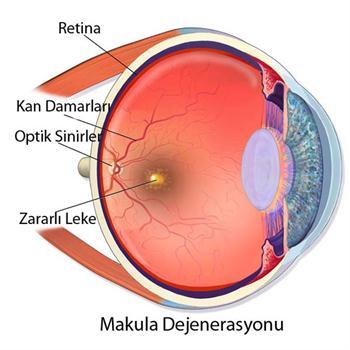 Retina Hastalıkları Sarı Nokta Tedavisi