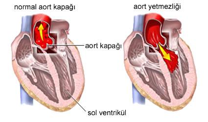 aort-darligi-hastaligi