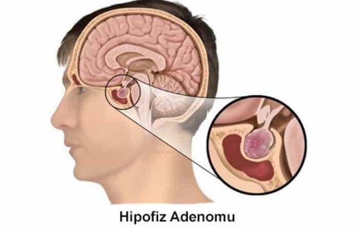 hipofiz-adenomu-tedavisi