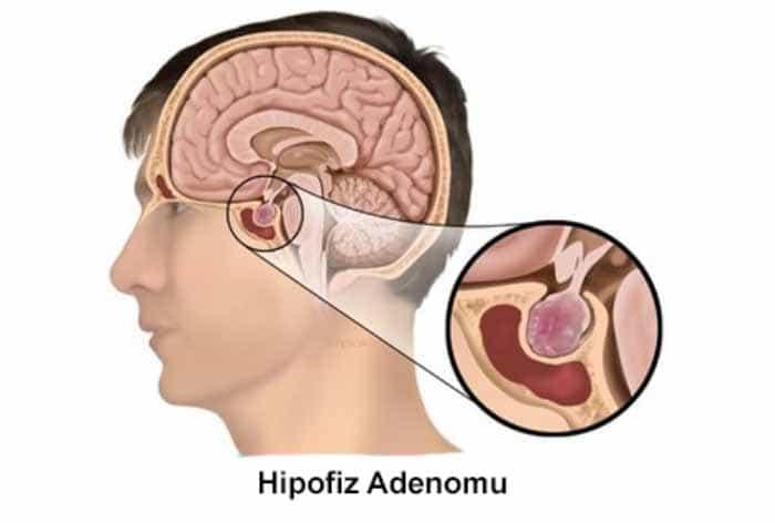 Hipofiz Adenomları Tedavisi
