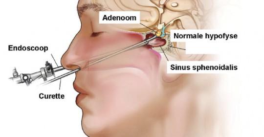 hipofiz-adenomu