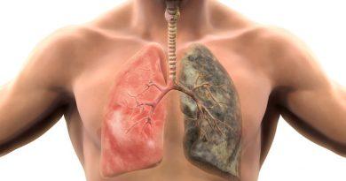 akciger-kanseri-tedavisi