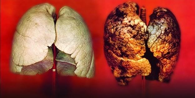 Akciğer Kanseri ve Tedavisi