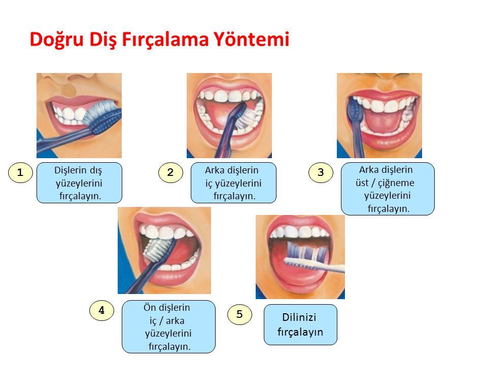 Diş Çürükleri ve Doğru Diş Fırçalama Nasıl