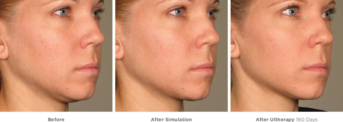 Ultrasonla Yüz Germe İşlemi