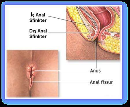 Makat Hastalıkları Fissur