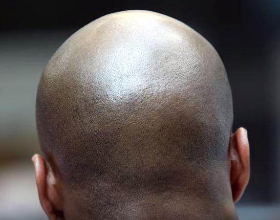 Avrupalı Genine Sahip Olanların Saçı Daha Erken Dökülüyor