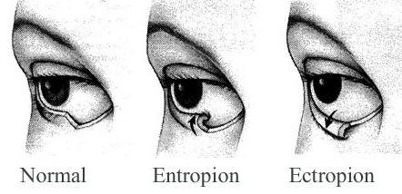 Göz Kapağının İçe ve Dışa Dönmesi Sorunu