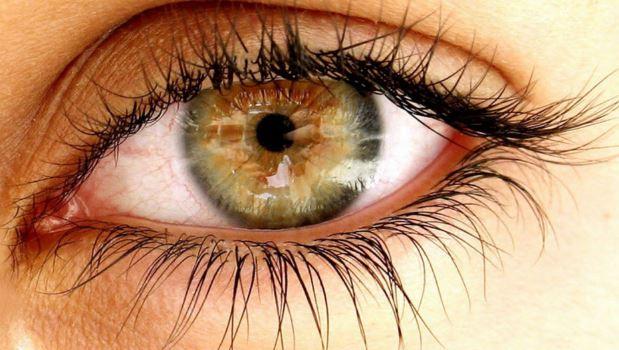 Göz ve Göz Çevresi Tümörleri nasıl oluşur