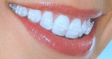 Ortodontik Tedavi nedir